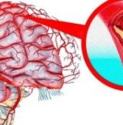 Какие лекарственные травы полезны для сосудов головного мозга — Топ-8