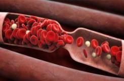 Какие лекарственные травы разжижают кровь — список из 7 самых эффективных