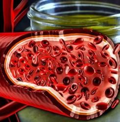 Чистка сосудов народными средствами – подробный обзор и мнение врачей