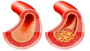 Атеросклероз вен и капилляров