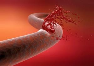 Как повысить тромбоциты в крови