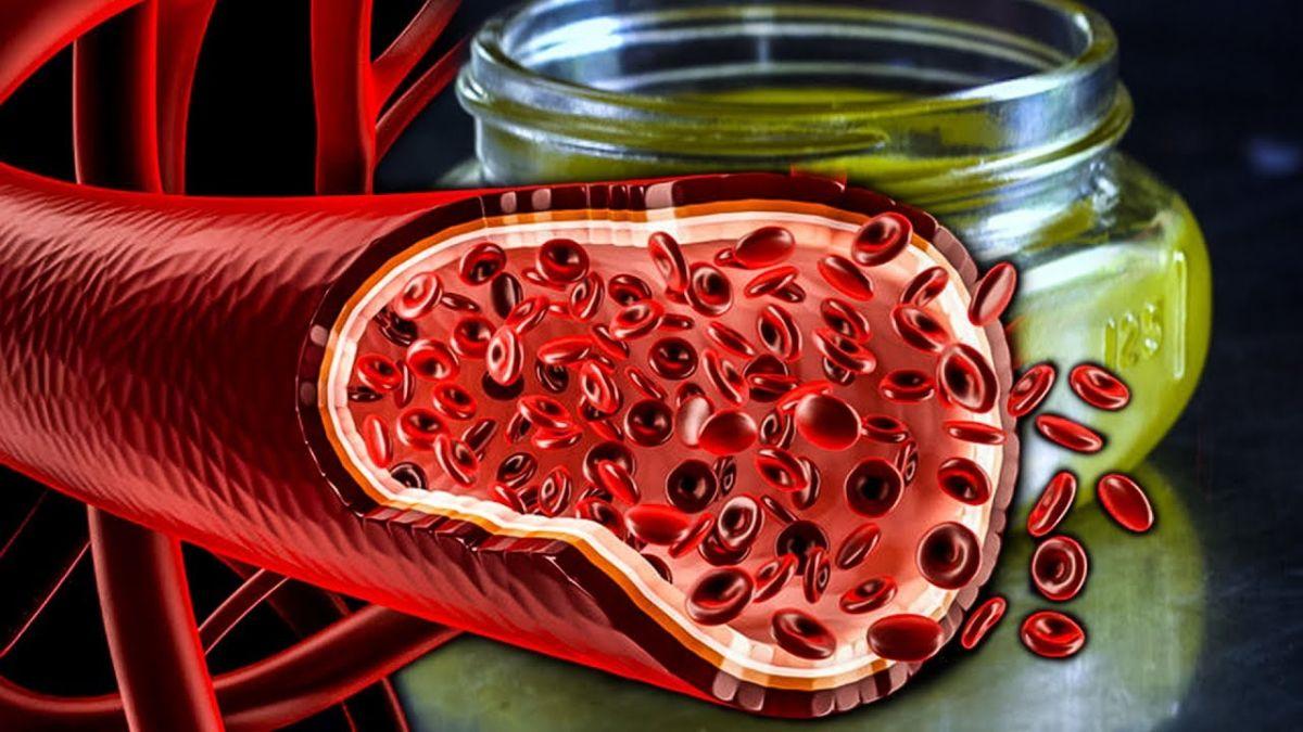 Растворение бляшек в сосудах - Все про холестерин