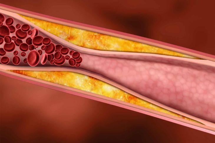 Какие травы снижают холестерин в крови: список с описанием